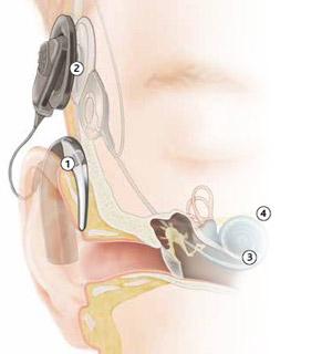 Gaes y Cochlear presentan el primer procesador de sonido para implante coclear Made for iPhone